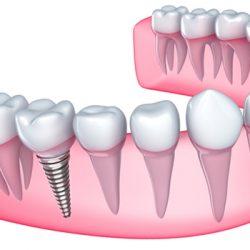 Diş implantı nedir, nasıl yapılır, implant fiyatları