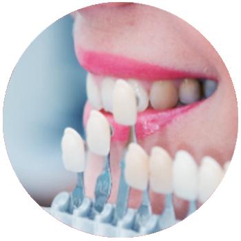 Lamina diş nedir, nasıl yapılır, fiyatları ve yaptıranların yorumları