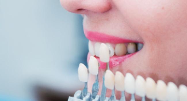 Lamina diş nedir, nasıl yapılır, fiyatları