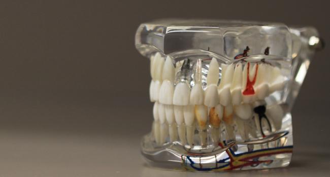 Endodonti / Kanal Tedavisi